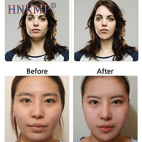 HNKMP Face Massager Guasha Roller Scraper Facial Skin Care Tools Roller Massage Microniddle Skin Care Lifting Wrinkle Remover