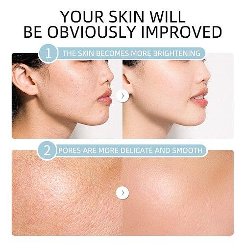 LAIKOU 4Pcs Hyaluronic Acid Serum Sakura 24k Gold Snail Moisturizing Vitamin C Essence Facial Shrink Pore Anti Acne Skincare Set