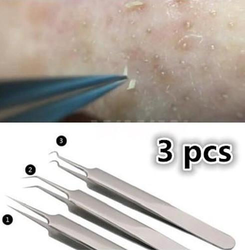 3pcs/set The High Quality Blackhead Tweezers Blackhead Blemish Removers Blemish Acne Pimple Extractor Face Skin Care Tool