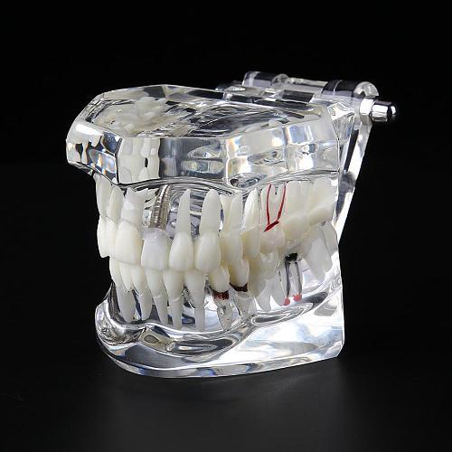 Hot Sale Dental Implant Disease Teeth Model for Medical Teaching Oral Health Care Science Dental Disease Teaching Study