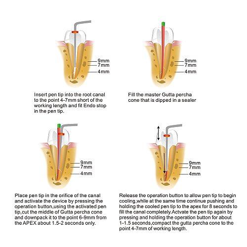 Azdent Dental Cordless Wireless Gutta Percha Obturation System Endo Heated Pen Dental Cordless Wireless Gutta Percha  + 2 Tips
