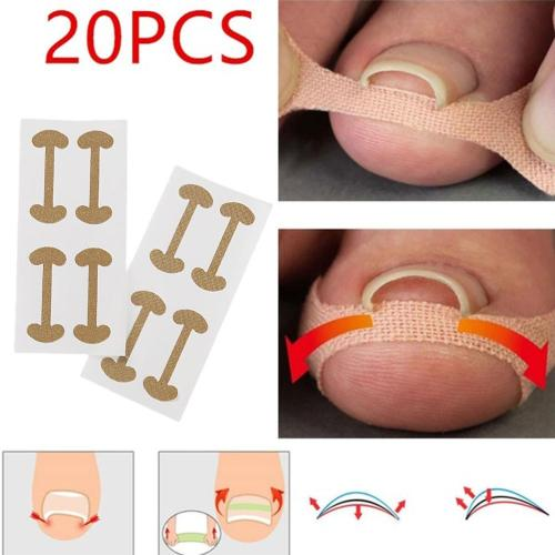 20pcs Professional Embedded Toe Nail Corrector Sticker Toenail Care Pedicure Thumb Curl Correction Sticker