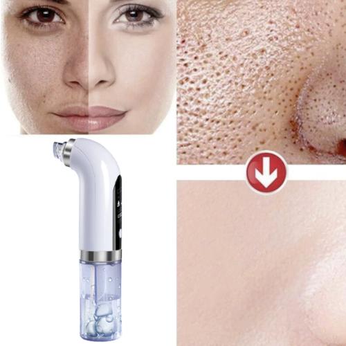 Remover Pore Vacuum Cleaner