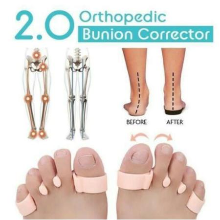 Orthopedic Bunion Corrector 2.0